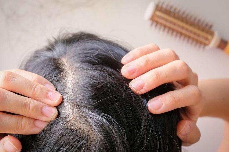 perte de cheveux traitement